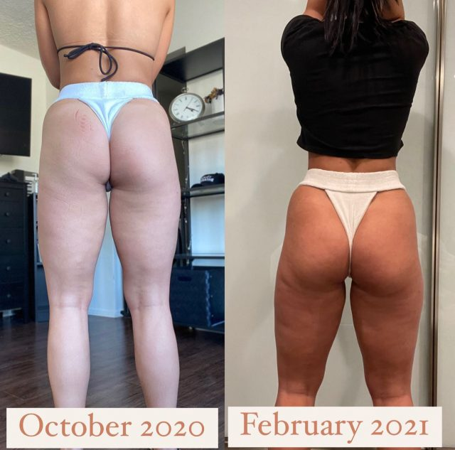 YES THIS IS ME 💃🏻!!! GLUTE HYPERTROPHY OCT 2020 —> FEB 2021. What did I do? • I upped my glute focused leg days to 2-3 times per week. I stopped doing resistance bands other than to warm up, and increased my overall LOAD. The bands were not enough weight to actually increase hypertrophy. I use them to warm up and activate my glutes. I continued doing the SAME MOVEMENTS while progressing the weight over time. • 1. Stationary lunge (hinging forward to put pressure on the glute) 2. Deadlifts (HEAVY) 8-10 reps per set 3. Hip thrusts (individual leg and together) 4. Glute kickbacks with dumbbells or cable machine  • NOTICE: My glutes are wider but not much more size was put on the very back. That's taken me a lot of time with trial and error to work on that. Continuing work in that area.... #fitspo #fitfam #workoutmotivation #workout #inspiration #motivation #balance #fit #exercise #gym #physique #dedication #fitspiration #healthylifestyle #health #abs #fitgirls #personaltrainer #fibromyalgia #fibro #bodyweight #latrainer #homeworkout #core #HIIT #glutes #gluteworkout #glutegrowth #biggerglutes